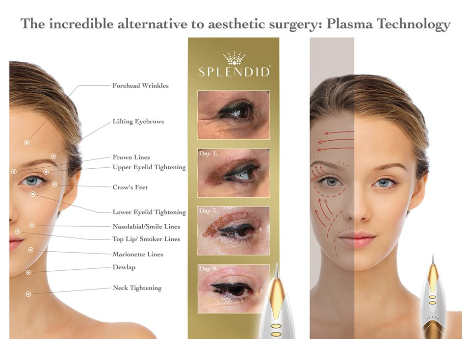 The incredible to aesthetic surgery: Plasma Technology